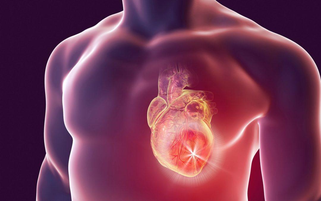 Atlet pun dapat mengalami henti jantung saat berolahraga